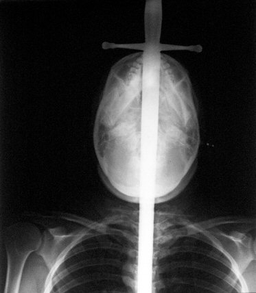 Frontal X-ray of Jewels